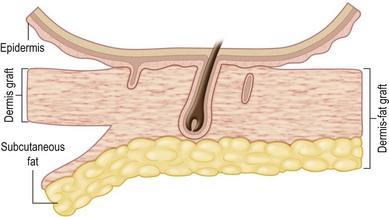 Subcutaneous Fat Surgery