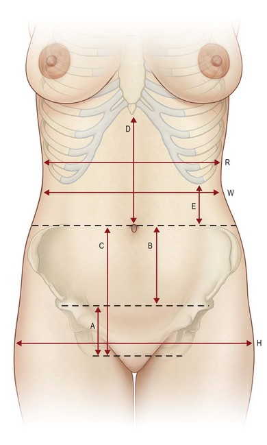 Abdominoplasty procedures plastic surgery key 252 anatomical landmarks normal abdominal anatomic proportions the approximate measurements for an average female abdomen are listed ccuart Images
