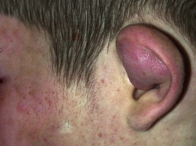 Her Calcified hematoma facial one more
