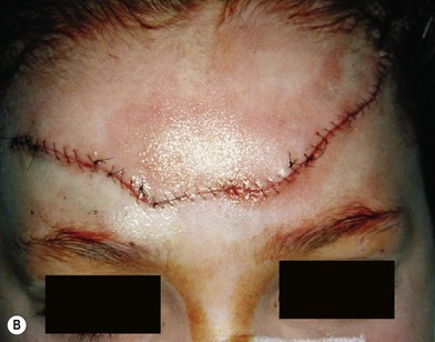 Facial Trauma Plastic Surgery Key