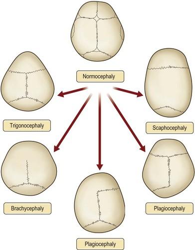 Scaphocephaly Symptoms