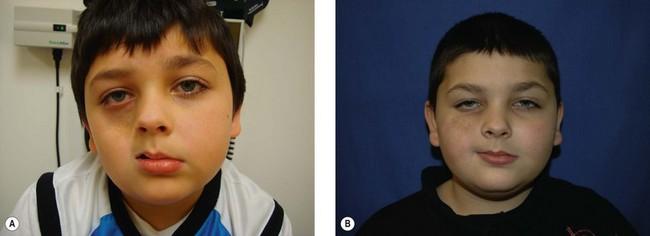 Hemifacial atrophy | Plastic Surgery Key