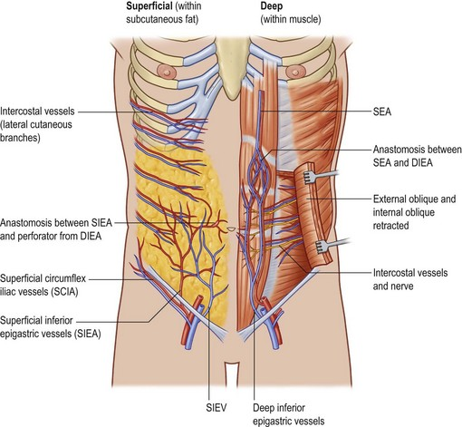 The Deep Inferior Epigastric Artery Perforator Dieap Flap