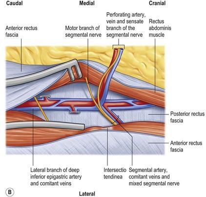 The deep inferior epigastric artery perforator (DIEAP ...