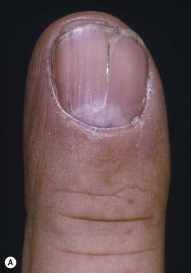 Nail And Fingertip Reconstruction Plastic Surgery Key