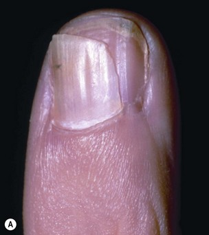 6 9 A Horizontal Laceration In The Sterile Matrix With Resultant Transverse Scar Can Cause Separation So That Two Nails Grow Out