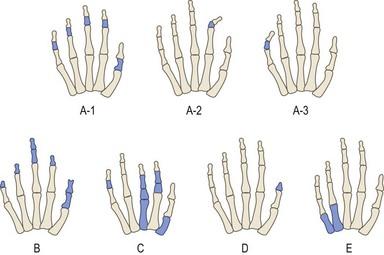congenital hand v | plastic surgery key, Skeleton
