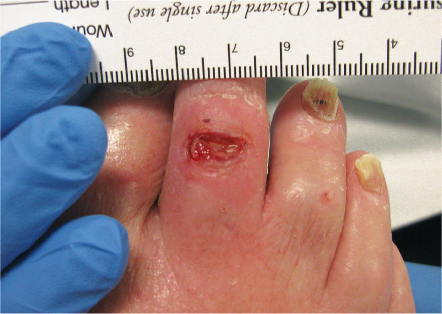 Evaluation Of The Patient With A Wound Plastic Surgery Key