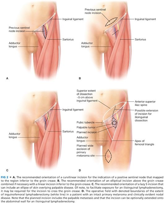 Groin Lymph Nodes Image collections - human anatomy organs diagram