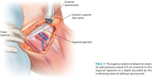 Inguinal Lymph Node Dissection (Inguinofemoral and