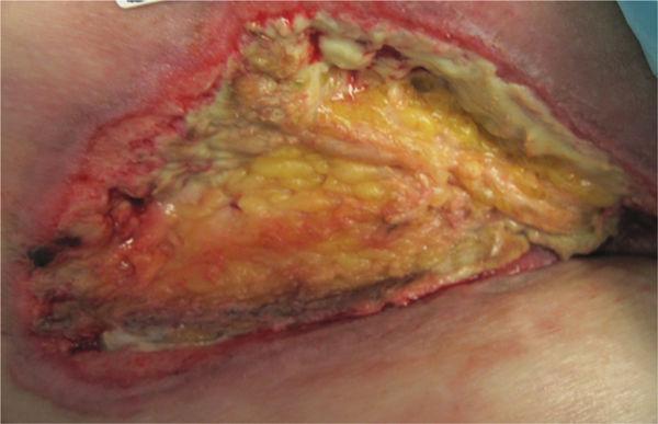 Wound Debridement | Plastic Surgery Key  Wound Debrideme...