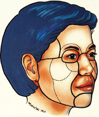 Relevant Surgical Anatomy for Rejuvenation of the Aging Face ...