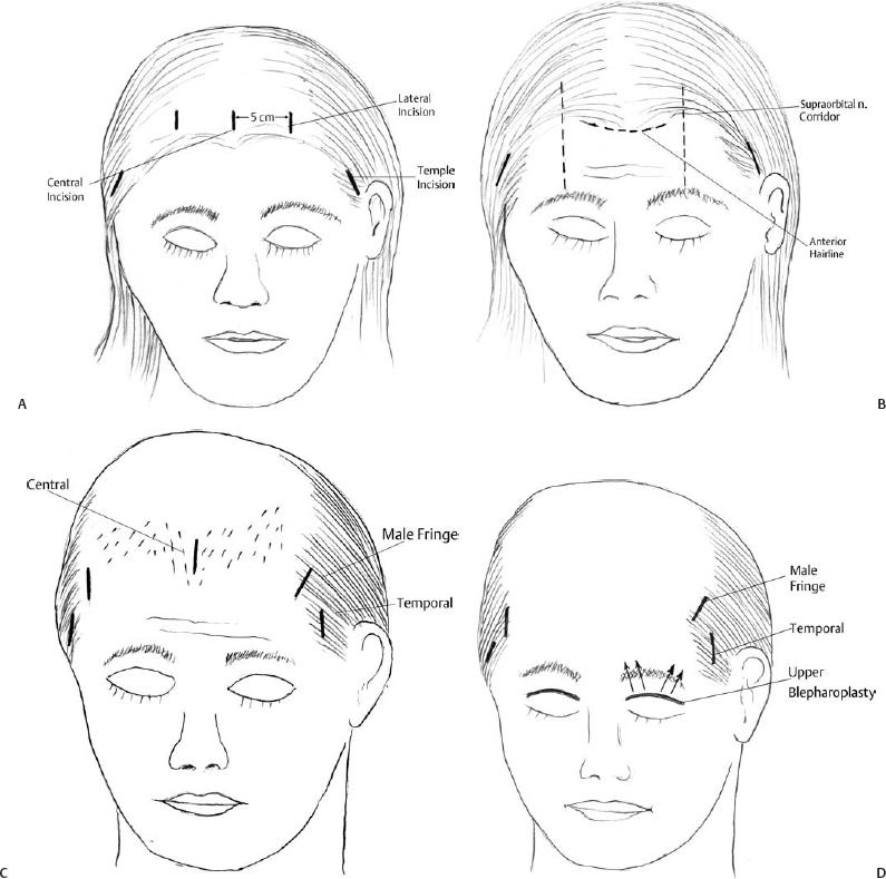 Endoscopic Forehead Lifting | Plastic Surgery Key