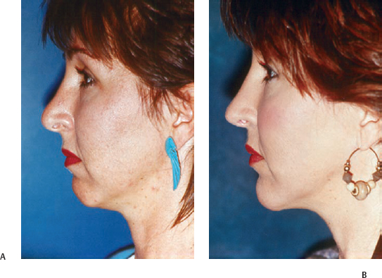 Facial Skeletal Implants | Plastic Surgery Key