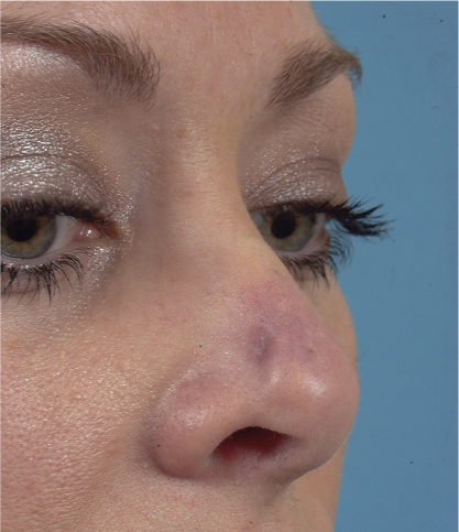 Rhinoplasty Complications | Plastic Surgery Key