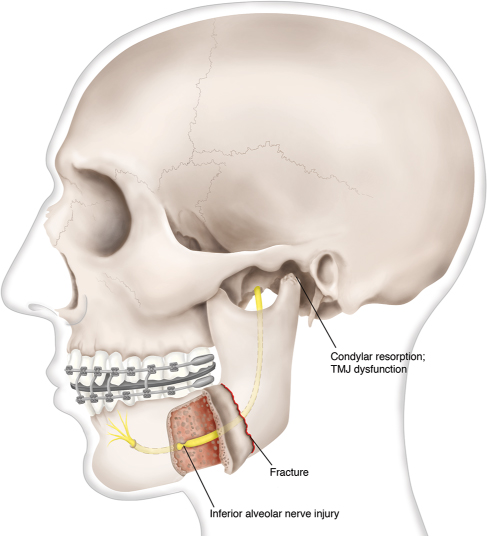 mandibular prognathism by bsso study Chapter 8 bilateral sagittal split osteotomy in a mandible previously  the first classification of prognathism,  (bsso) is a common mandibular orthognathic.