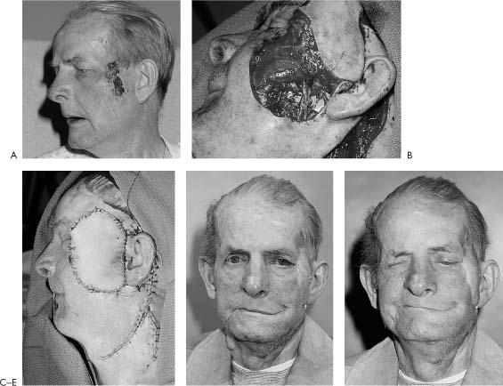 plugs-trypophobia-peripheral-facial-paralysis