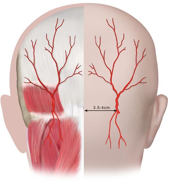 Occipital Artery Scalp and Temple | Pla...