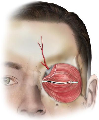 Forehead | Plastic Surgery Key