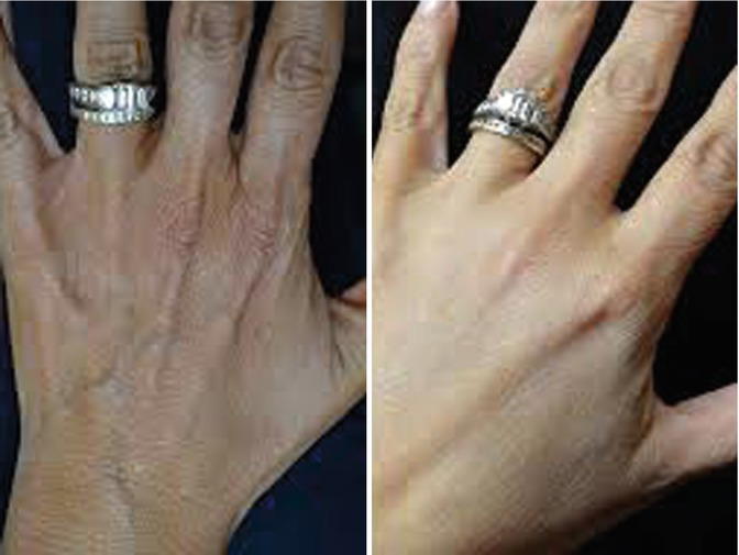 Hand Rejuvenation with Stem Cell Fat Transfer | Plastic Surgery Key