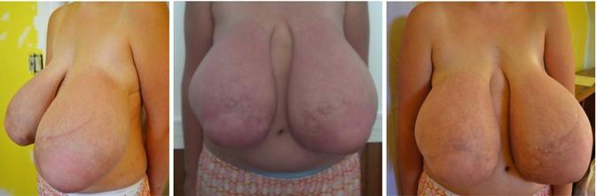 assymetric virginal breast