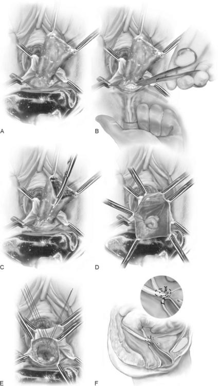 Local control for vaginal botryoid rhabdomyosarcoma with pre