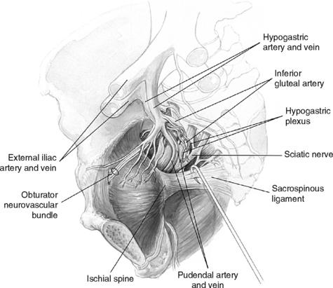 Surgical Treatment of Vaginal Vault Prolapse and Enterocele ...