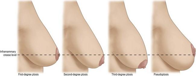 Hot Nude Photos Bridget the midget nip