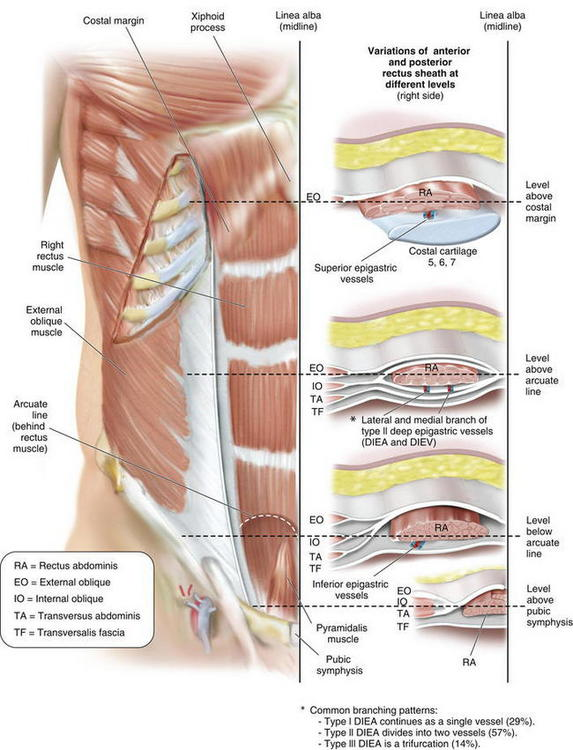 Abdominal wall anatomy and vascular supply plastic surgery key image ccuart Gallery
