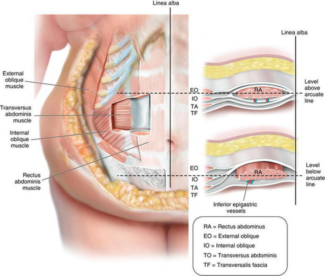 Panniculectomy and Abdominal Wall Reconstruction | Plastic Surgery Key