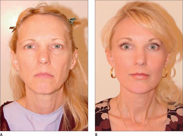 Facelift with SMAS Flaps | Plastic Surgery Key