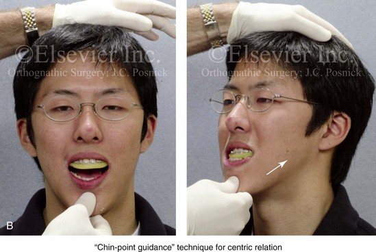 Standard Analytic Model Planning for Orthognathic Surgery ...