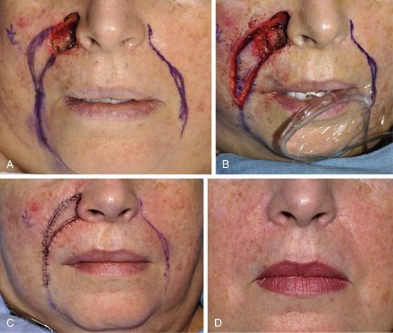 Facial flap surgery, sexy magical girl volume torrent