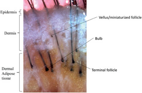 An Overview Of Hair Follicle Anatomy And Biology Plastic Surgery Key
