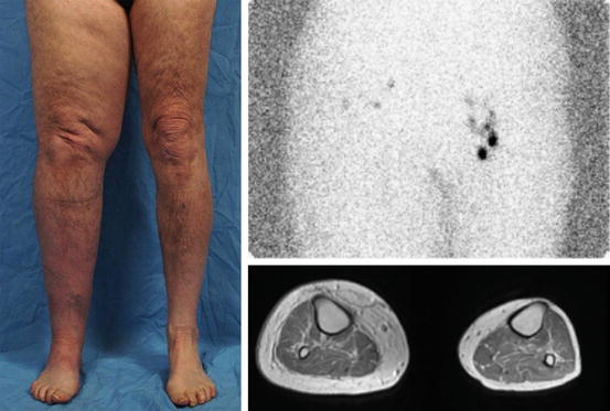 what is a lymphedema mass