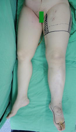 Deep vein thrombosis physiotherapy treatment