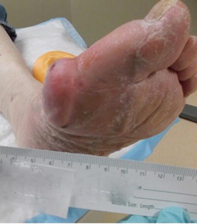 how to control uric acid with diet foods high in uric acid content list acute gout treatment uk
