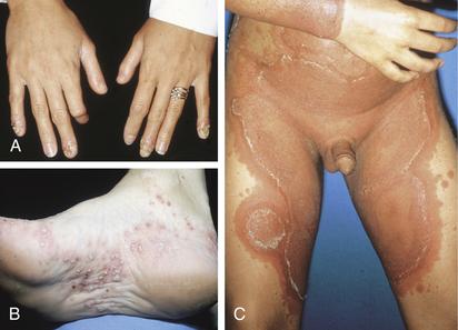Psoriasis types: Pustular | National Psoriasis Foundation
