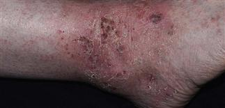 Lichen simplex chronicus | Plastic Surgery Key