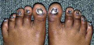 Ectodermal dysplasia (nails) | Plastic Surgery Key