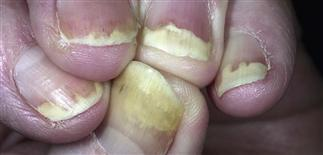 Nail diseases: Psoriasis | Plastic Surgery Key