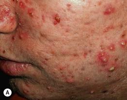 acne vulgaris plastic surgery key