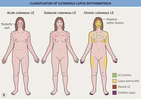 lupus erythematosus | plastic surgery key, Skeleton
