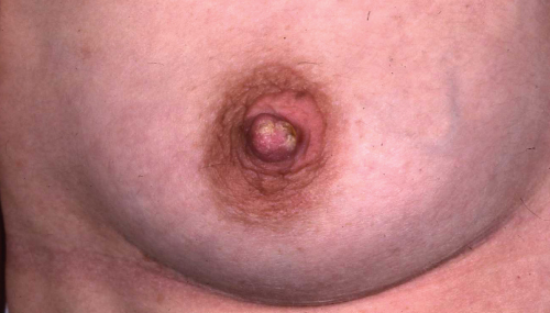 eczema on areola #11