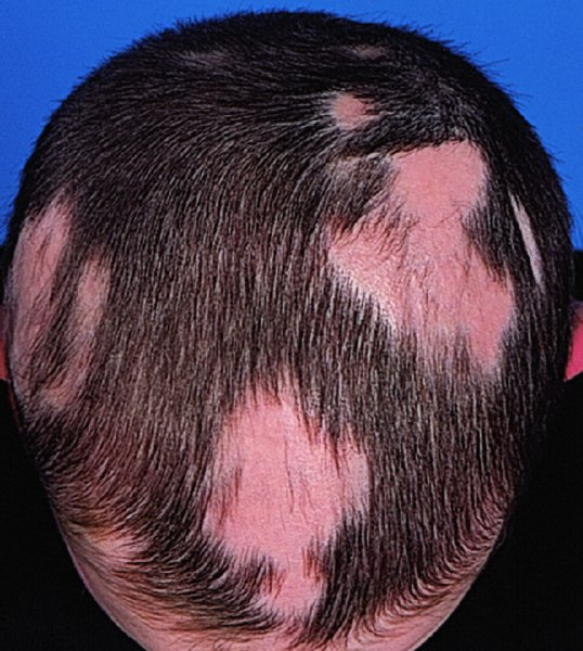 Hairstyles For Alopecia Areata : Regional dermatology plastic surgery key