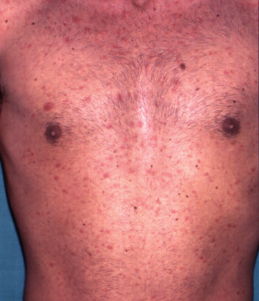 15: HIV and the Skin | Plastic Surgery Key