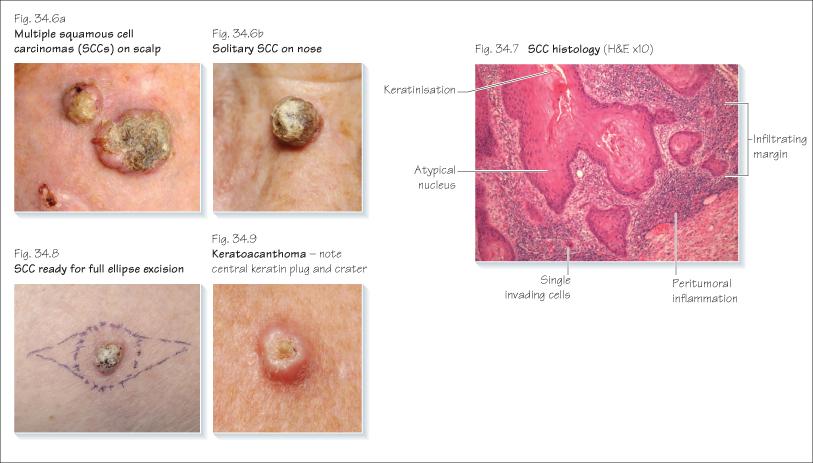 Non Melanoma Skin Cancers Plastic Surgery Key
