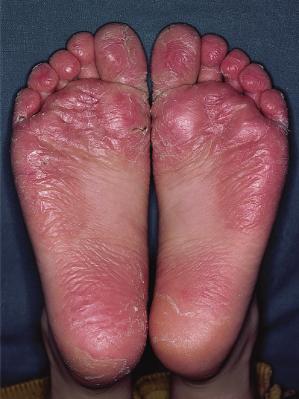 Juvenile Plantar Dermatitis Picture Image on MedicineNet.com