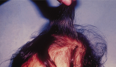 Fig 65 6 Flag Sign Of Hair Discoloration