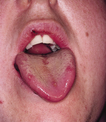 147 Diseases of the Oral Mucosa and Tongue | Plastic ...